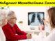 Malignant Mesothelioma Cancer
